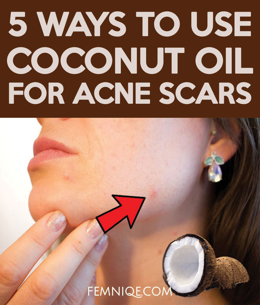 Natural Coconut Oil For Acne