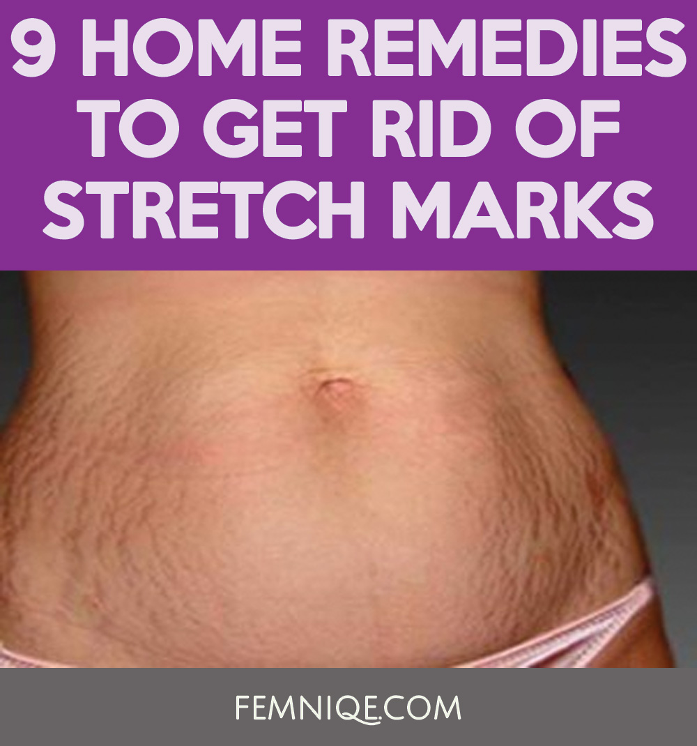 how to get rid of stretch marks thigh u0026 hips femniqe