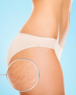 How To Get Rid Of Stretch Marks Butt Thigh Hips Femniqe